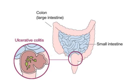 Ulcerative Colitis And Proctitis Gastroenterologist